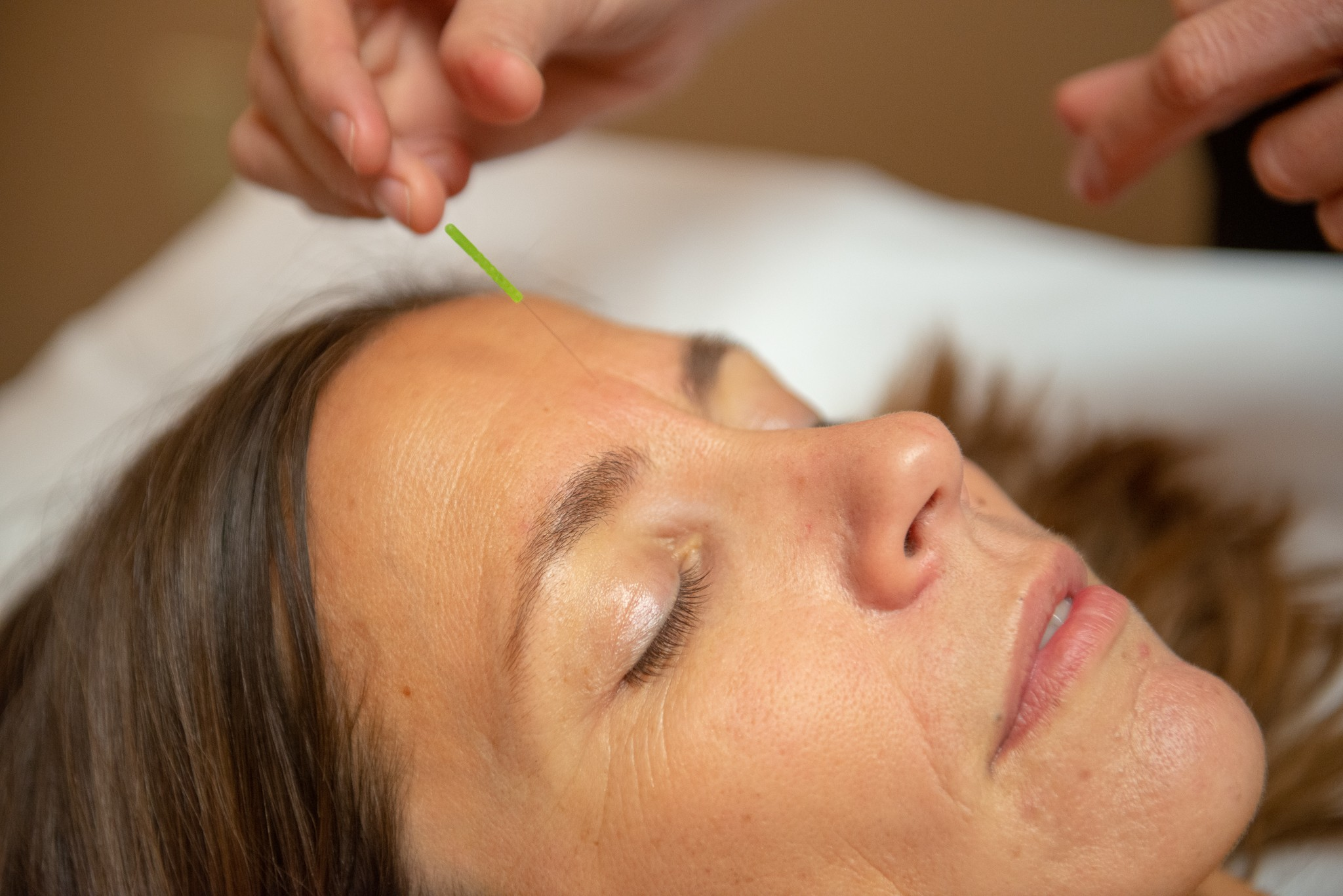 Top 10 Reasons to Try Acupuncture: Acupuncture Works!