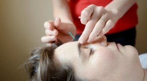 Cosmetic Acupuncture VT