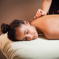 Vermont Acupuncture Reviews