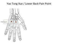 Acute, Severe Back Pain Treatment with Seated Acupuncture: A Clinical Pearl