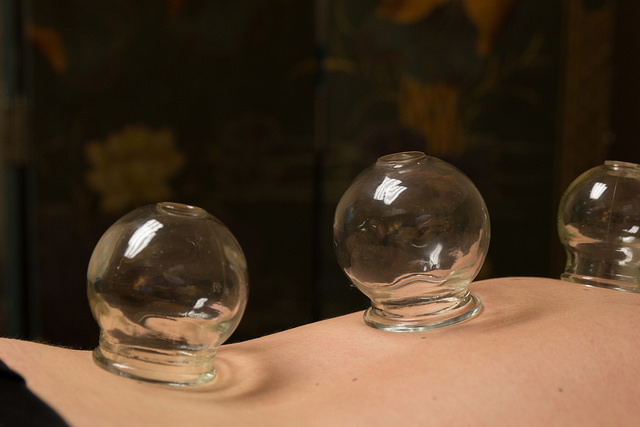Cupping For Neck Pain