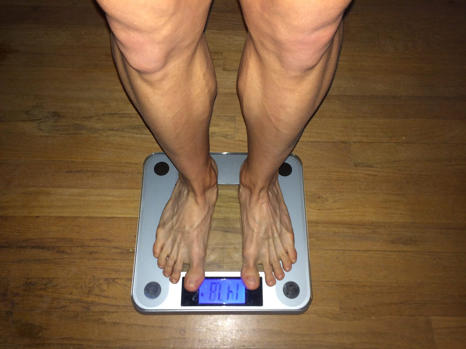 Acupuncture for Weight Loss: Research Update