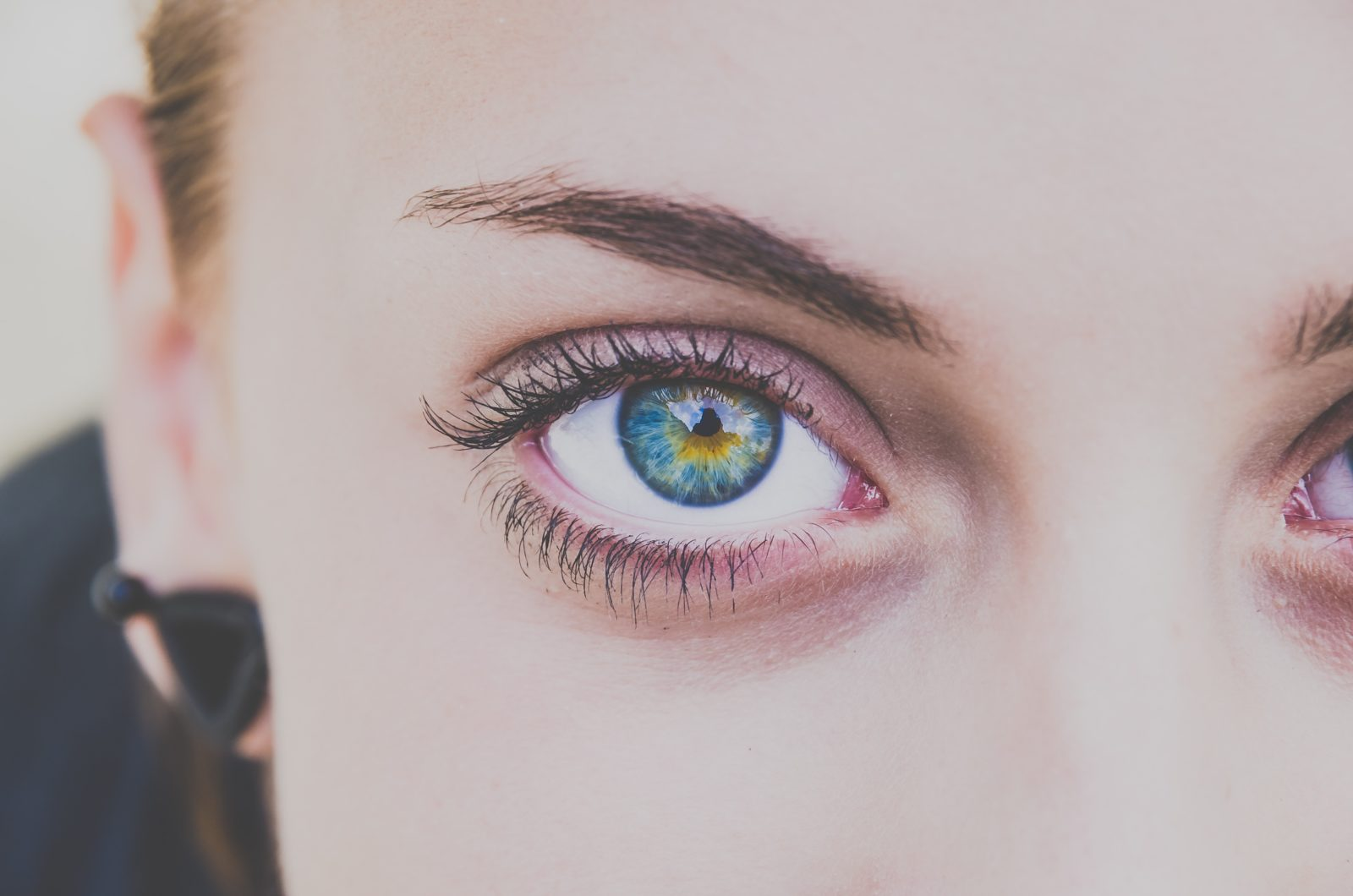 Natural Eye Health- Are Your Eyes Red?