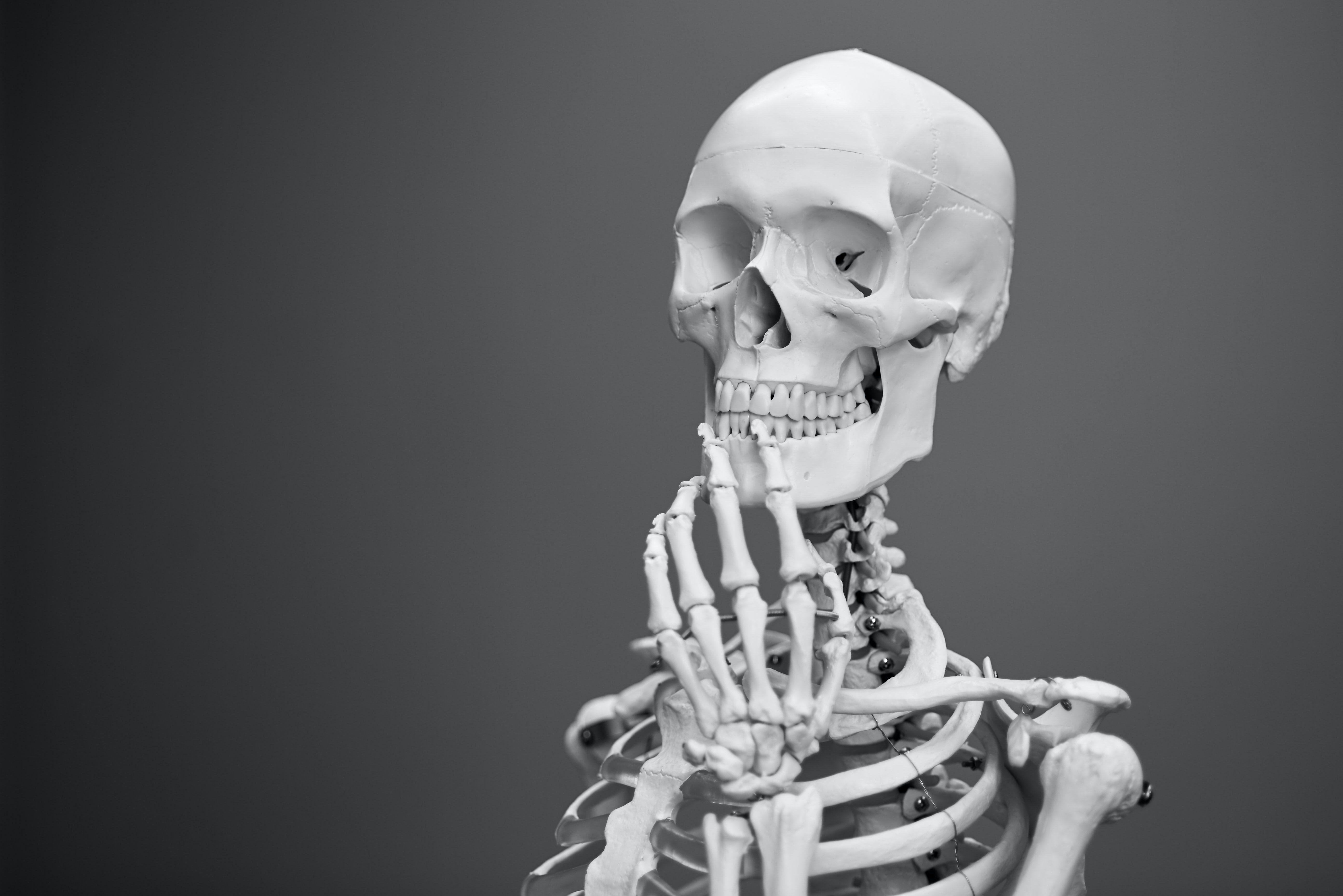 joint pain skeleton