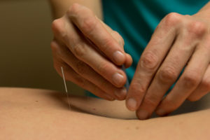 Acupuncture and Allergies: Research Update