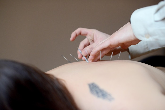 Acupuncture: How Many Treatments Will I Need?