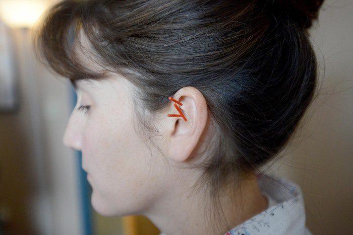 Needling Ear